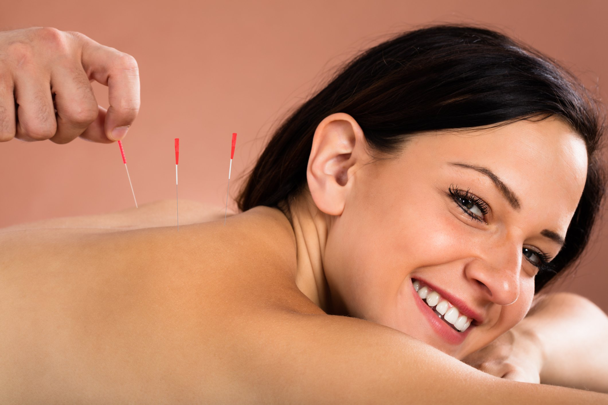 Woman Receiving Acupuncture Treatment from oregon workers compensation benefits