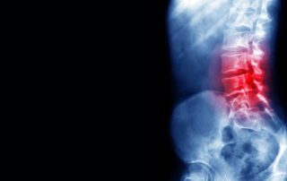back pain oregon workers compensation attorneys